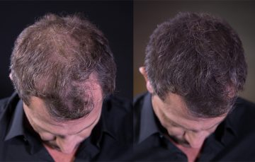 Hair loss Hairatin