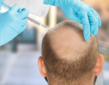 Hair transplant limitations